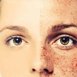 Serum Vitamin C là thần dược giúp da vừa trắng sáng vừa trẻ hóa